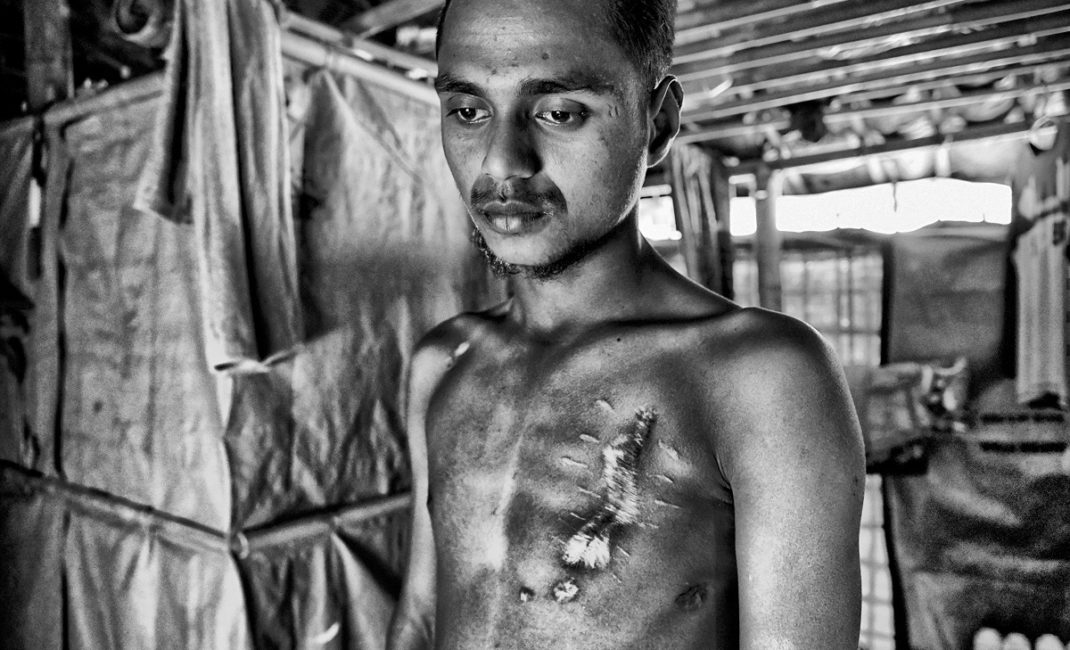Mohammed Hasson showing his wounds in a friend's makeshift hut in the Kutupalong Refugee Camp.